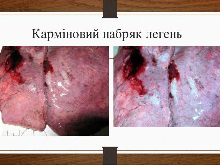 Карміновий набряк легень