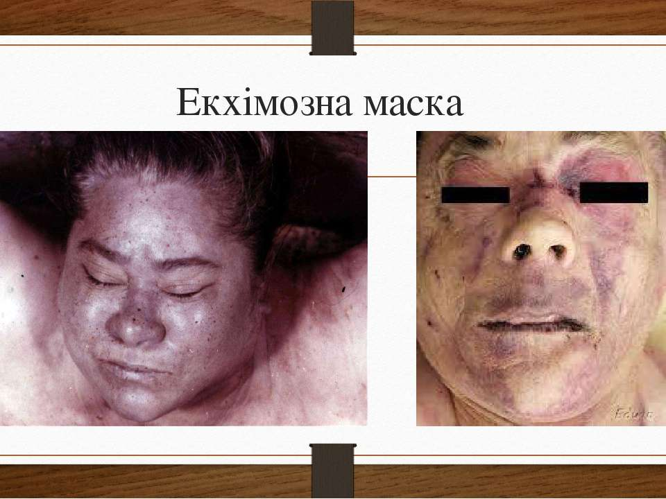 Екхімозна маска