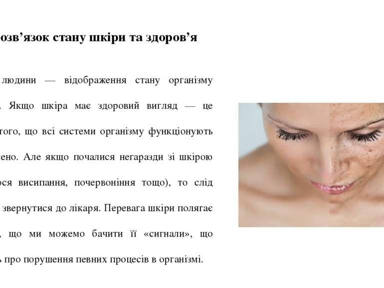Взаємозв'язок стану шкіри та здоров'я  Шкіра людини — відображення стану орг...
