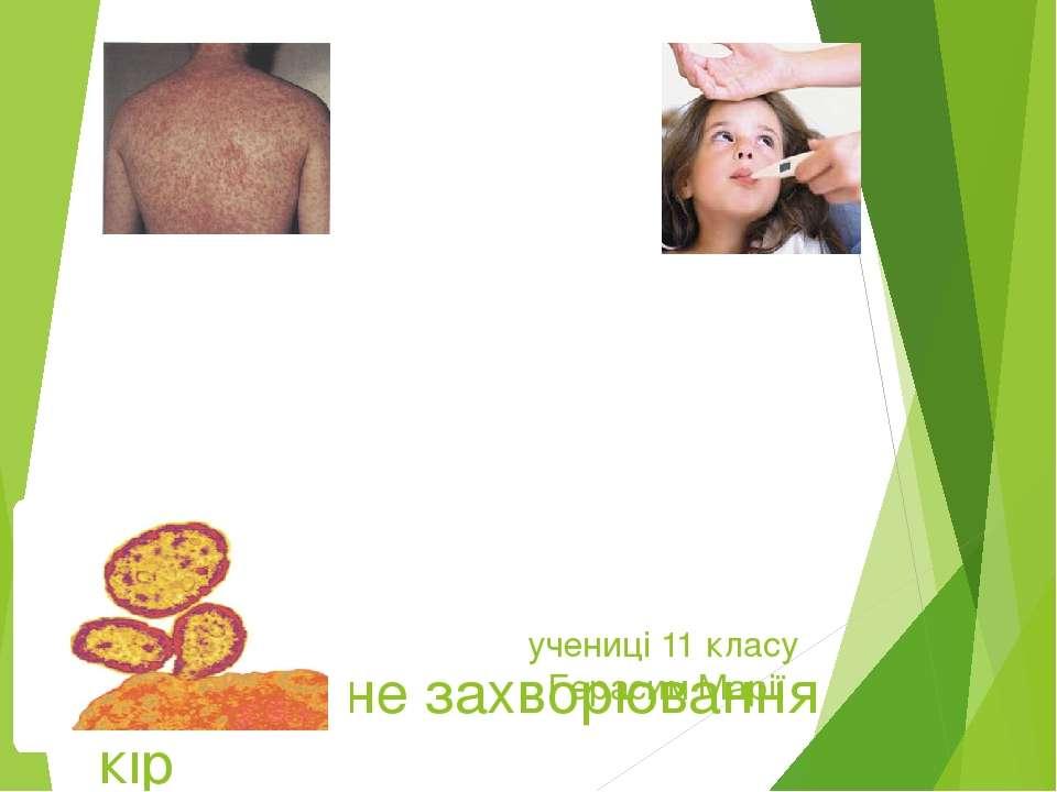 Інфекційне захворювання кір учениці 11 класу Герасим Марії