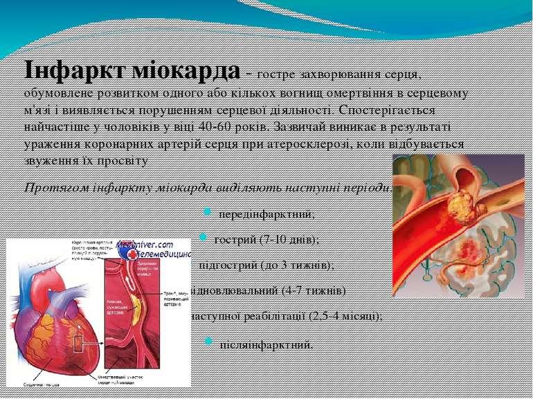 Гіпертонічна хвороба - захворювання серцево-судинної системи, що характеризує...