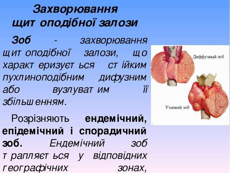 Захворювання щитоподібної залози Зоб - захворювання щитоподібної залози, що х...