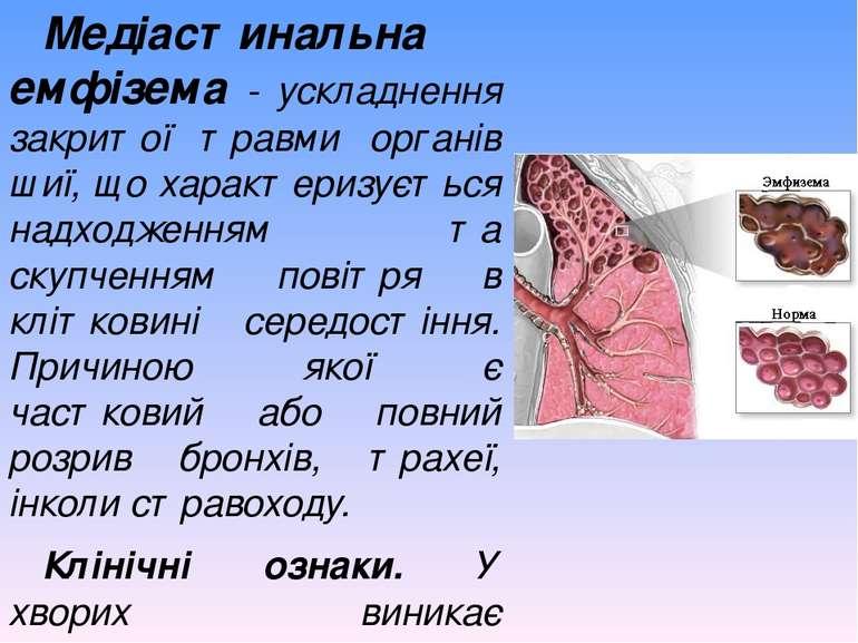 Медіастинальна емфізема - ускладнення закритої травми органів шиї, що характе...