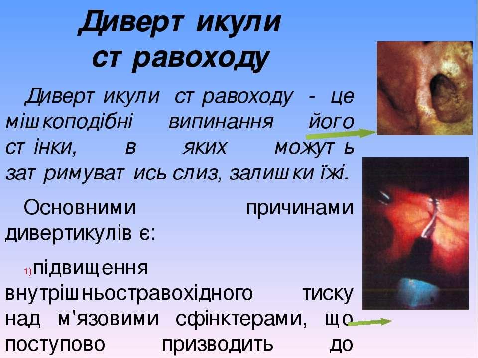 Дивертикули стравоходу Дивертикули стравоходу - це мішкоподібні випинання йог...