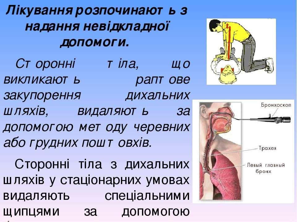 Лікування розпочинають з надання невідкладної допомоги. Сторонні тіла, що вик...
