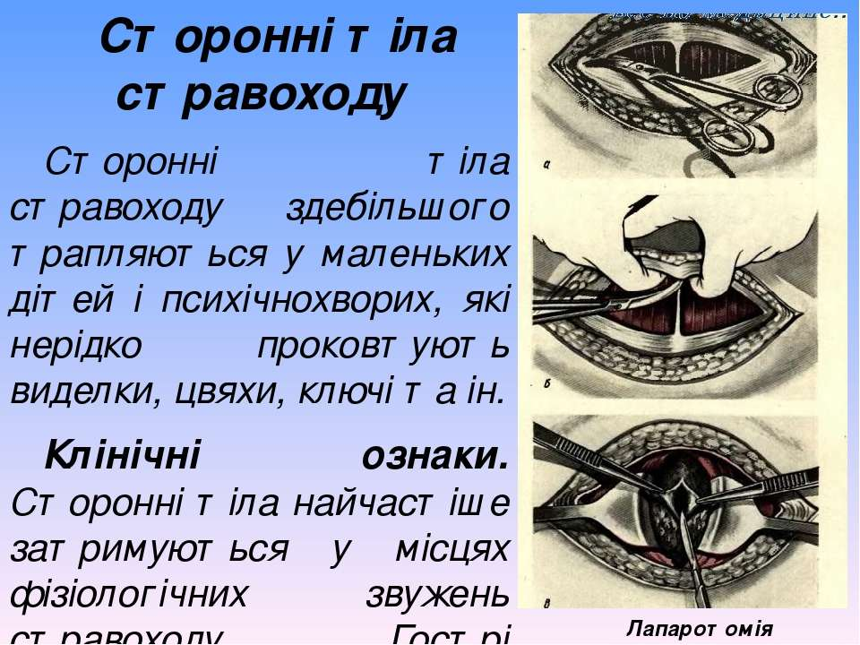 Сторонні тіла стравоходу Сторонні тіла стравоходу здебільшого трапляються у м...