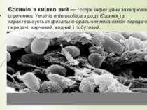 Єрсиніо з кишко вий— гостре інфекційне захворювання, яке спричинюєYersinia ...