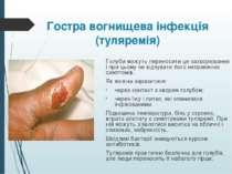 Гостра вогнищева інфекція (туляремія) Голуби можуть переносити це захворюванн...