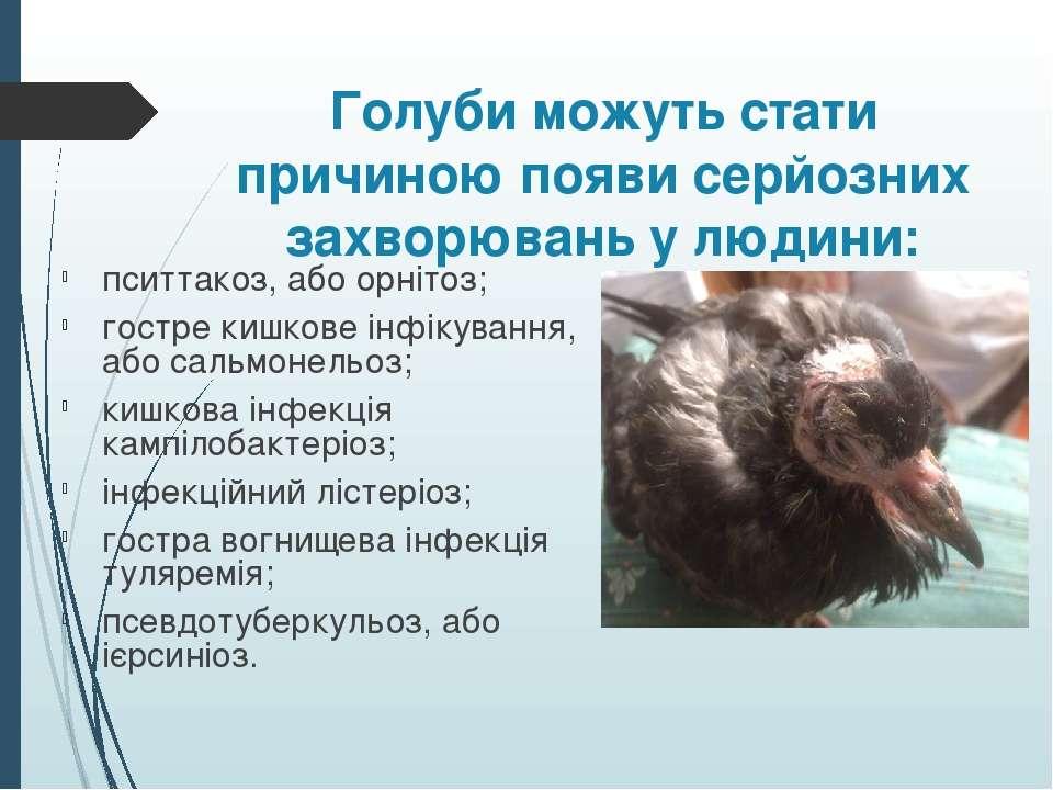 Голуби можуть стати причиною появи серйозних захворювань у людини: пситтакоз,...