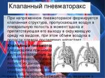 Клапанный пневматоракс При напряженном пневмотораксе формируется клапанная ст...