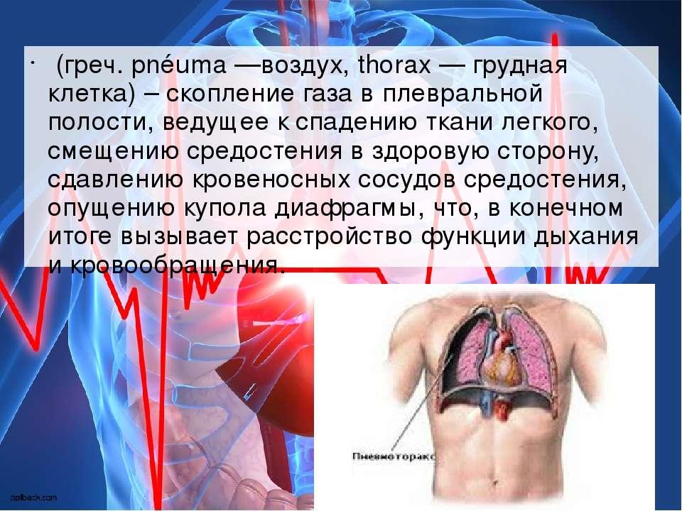 (греч. pnéuma —воздух, thorax — грудная клетка) – скопление газа в плевральн...