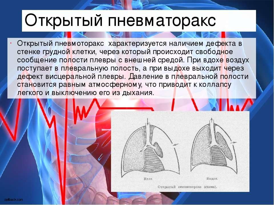 Открытый пневматоракс Открытый пневмоторакс характеризуется наличием дефекта...
