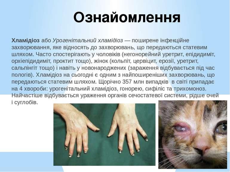 Ознайомлення ХламідіозабоУрогенітальний хламідіоз— поширенеінфекційне зах...