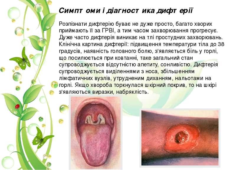 Розпізнати дифтерію буває не дуже просто, багато хворих приймають її за ГРВІ,...