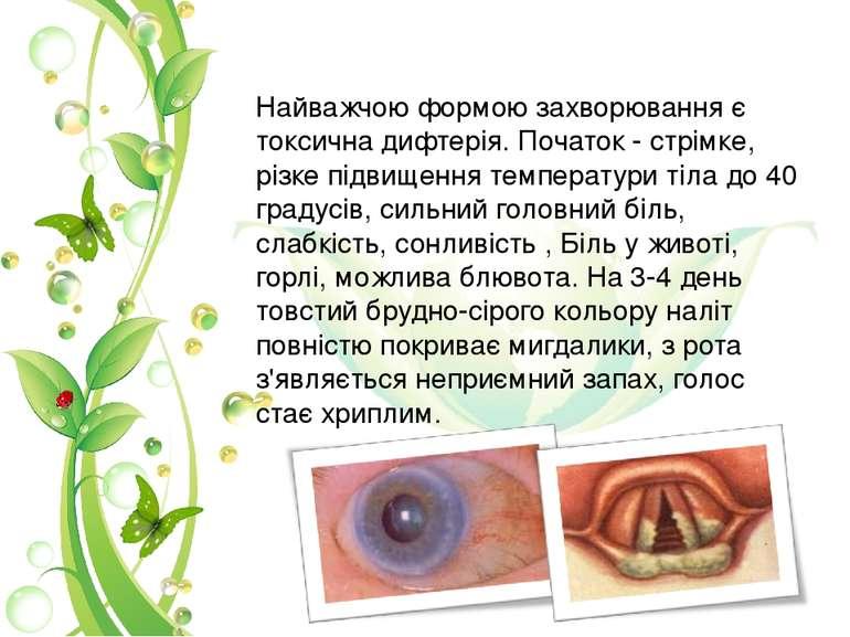 Найважчою формою захворювання є токсична дифтерія. Початок - стрімке, різке п...