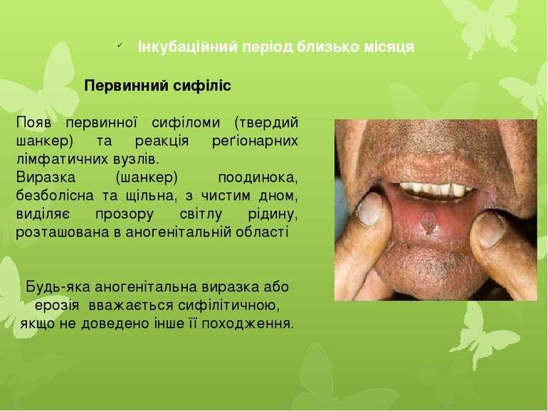 Інкубаційний період близько місяця Первинний сифіліс Появ первинної сифіломи ...