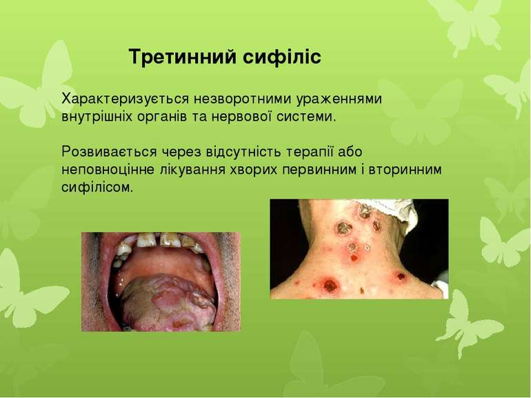 Характеризується незворотними ураженнями внутрішніх органів та нервової систе...