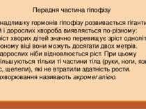 Передня частина гіпофізу При надлишку гормонів гіпофізу розвивається гігантиз...