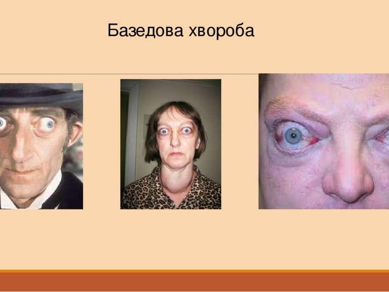 Базедова хвороба