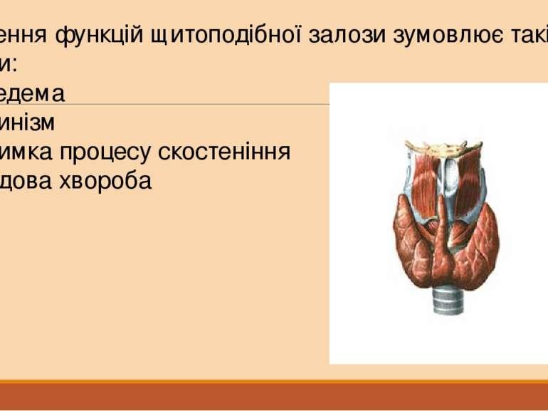 Порушення функцій щитоподібної залози зумовлює такі хвороби: Мікседема Кретин...