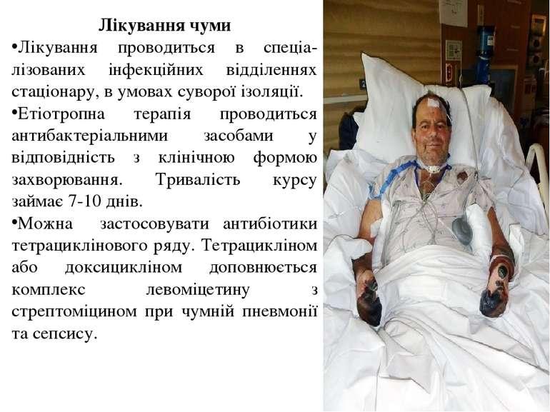 Лікування чуми Лікування проводиться в спеціа-лізованих інфекційних відділенн...