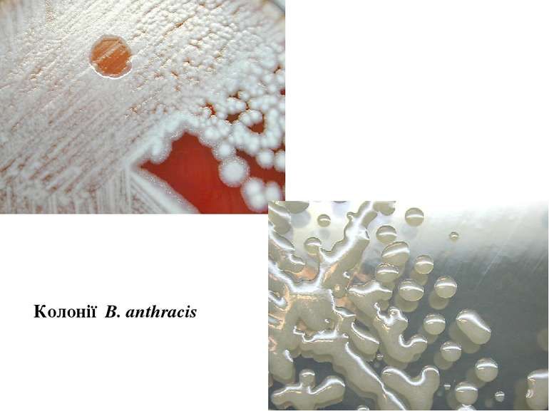 Колонії В. аnthracis