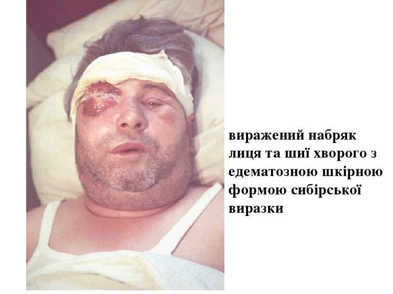 виражений набряк лиця та шиї хворого з едематозною шкірною формою сибірської ...