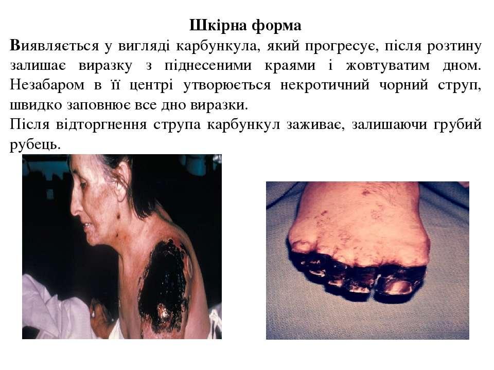 Шкірна форма Виявляється у вигляді карбункула, який прогресує, після розтину ...