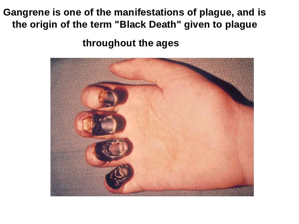 Gangrene is one of the manifestations of plague, and is the origin of the ter...