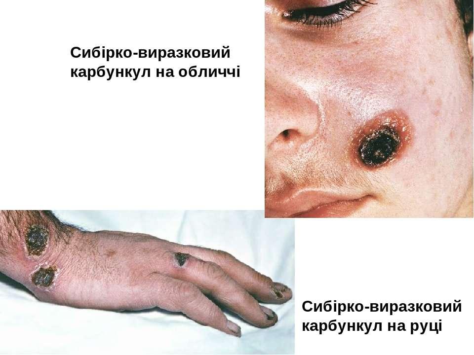 Сибірко-виразковий карбункул на обличчі Сибірко-виразковий карбункул на руці