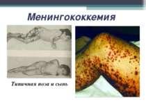 Менингококкемия Типичная поза и сыпь