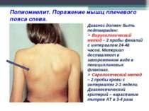 Полиомиелит. Поражение мышц плечевого пояса слева. Диагноз должен быть подтве...