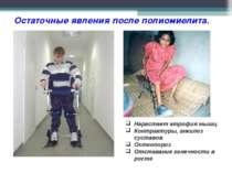 Остаточные явления после полиомиелита. Нарастает атрофия мышц Контрактуры, ан...