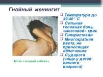 Гнойный менингит Поза «легавой собаки» Температура до 39-40° С Сильная головн...