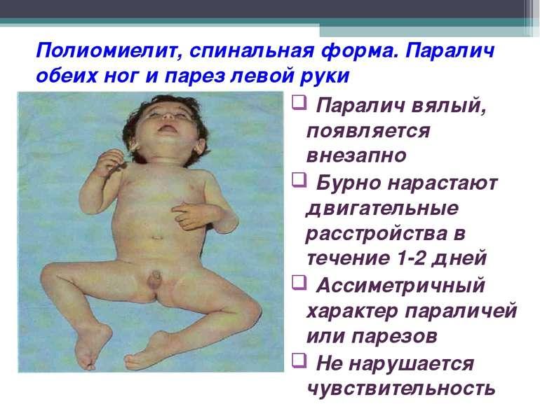 Полиомиелит, спинальная форма. Паралич обеих ног и парез левой руки Паралич в...
