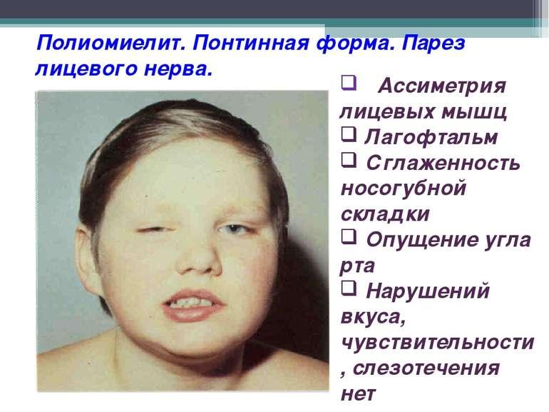Полиомиелит. Понтинная форма. Парез лицевого нерва. Ассиметрия лицевых мышц Л...