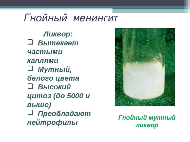 Гнойный менингит Гнойный мутный ликвор Ликвор: Вытекает частыми каплями Мутны...