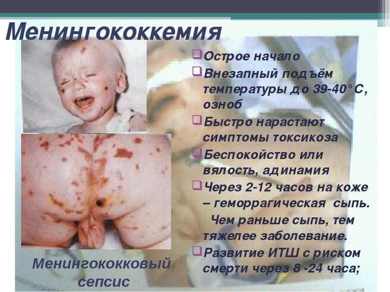 Менингококкемия Острое начало Внезапный подъём температуры до 39-40°С, озноб ...
