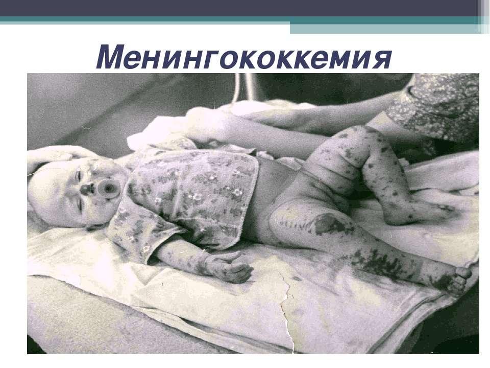 Менингококкемия