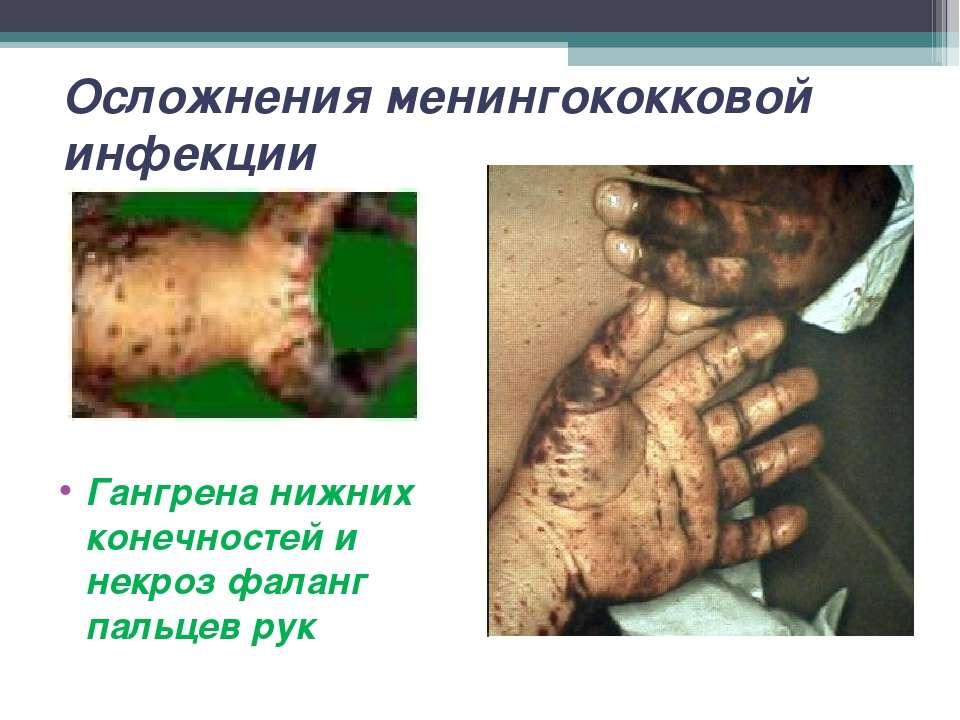 Осложнения менингококковой инфекции Гангрена нижних конечностей и некроз фала...