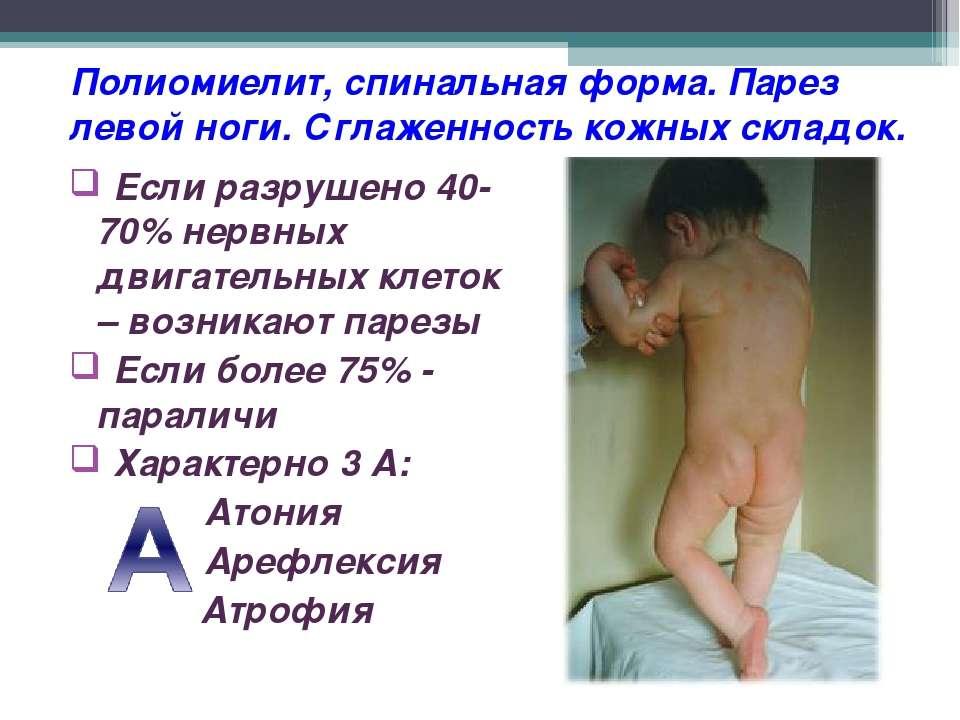 Полиомиелит, спинальная форма. Парез левой ноги. Сглаженность кожных складок....