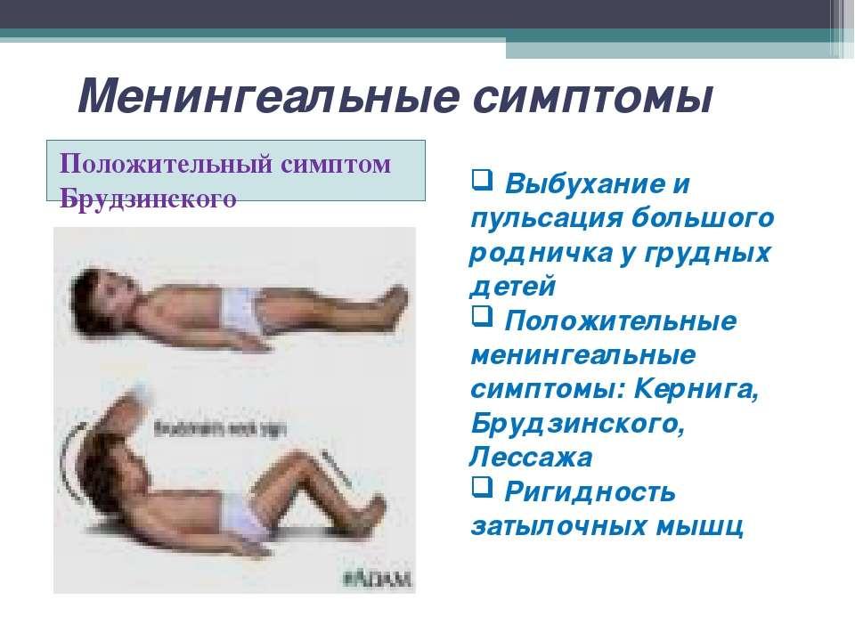 Менингеальные симптомы Положительный симптом Брудзинского Выбухание и пульсац...