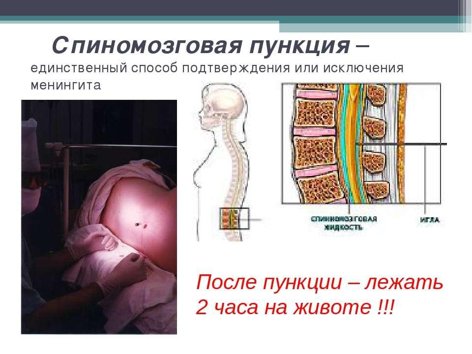 Спиномозговая пункция – единственный способ подтверждения или исключения мени...