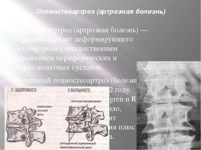 Полиостеоартроз (артрозная болезнь) Полиостеоартроз (артрозная болезнь) — нер...