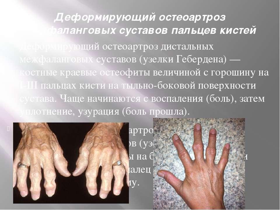 Деформирующий остеоартроз межфаланговых суставов пальцев кистей Деформирующий...