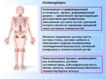 Остеоартроз (=деформирующий остеоартроз , артроз, деформирующий артроз) — хро...