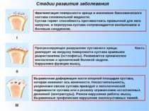 Стадии развития заболевания Фрагментация поверхности хряща и изменение биохим...