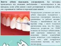 Зняття зубних відкладень ультразвуком. Ця методика проводиться під місцевим з...