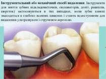 Інструментальний або механічний спосіб видалення. Інструменти для зняття зубн...