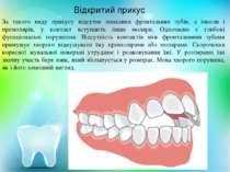 Відкритий прикус За такого виду прикусу відсутнє змикання фронтальних зубів, ...